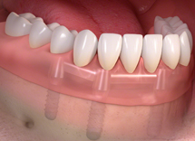 Removable denture with bar