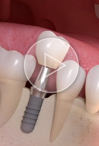 Implant-borne single-tooth treatment teaser