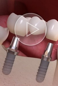 Implant-borne multi-tooth treatment teaser